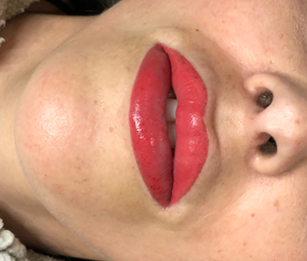 SPMU Lips 6
