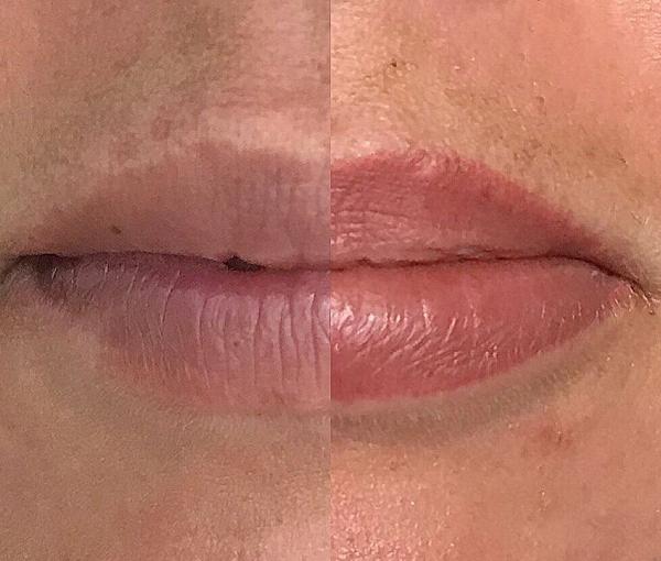 SPMU Lips 12
