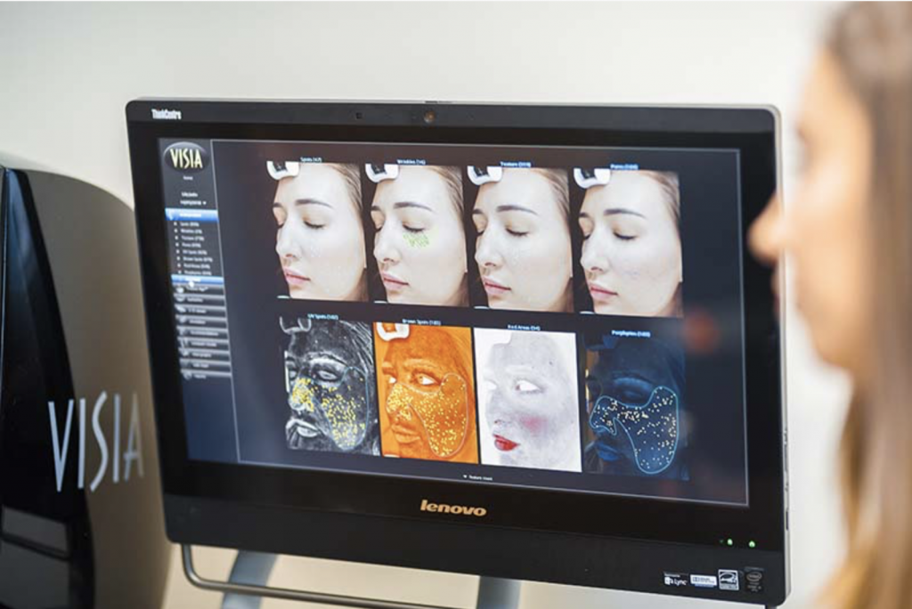 VISIA Skin Analysis 7