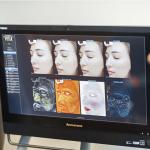 VISIA Skin Analysis 2