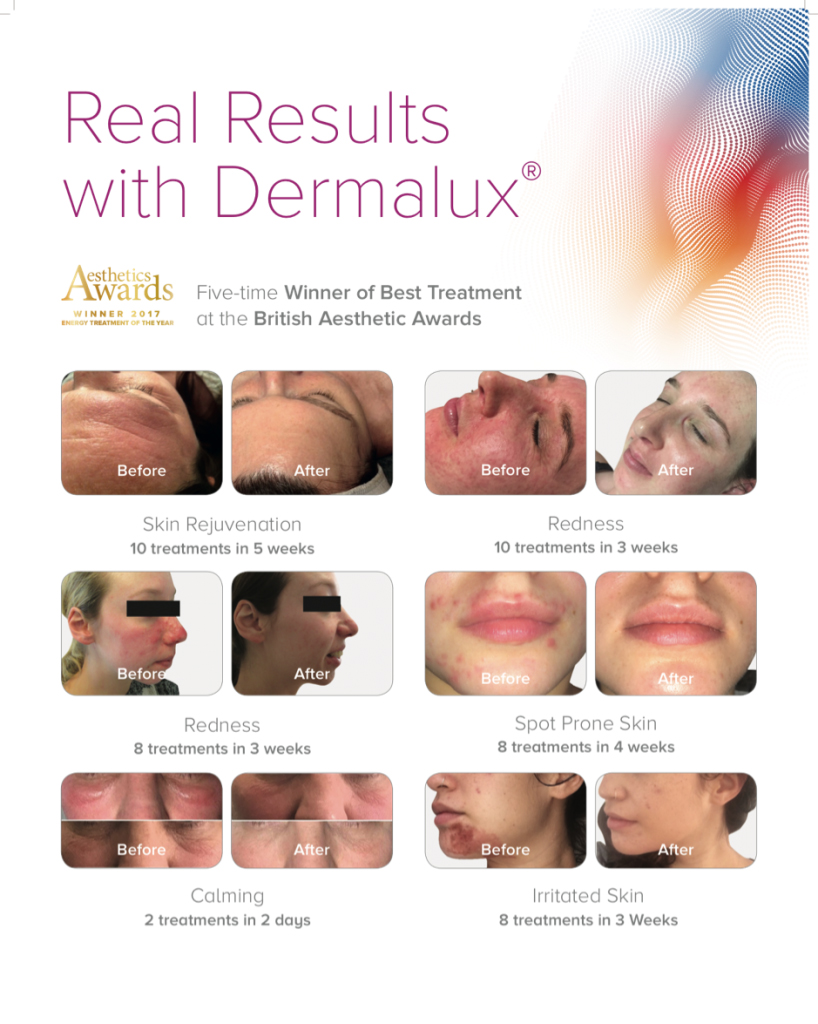 Dermalux at Tenterden Skin and Beauty Clinic